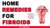 How To Treat Fibroids At Home: Best Shrink Fibroids Remedies